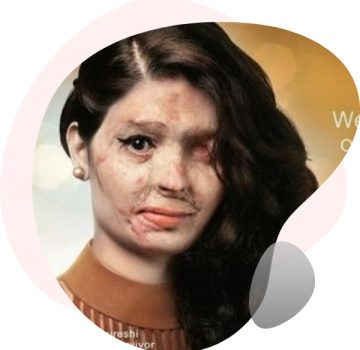 #EndAcidAttack